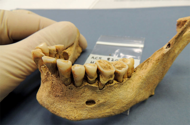 placa dental prehistorica